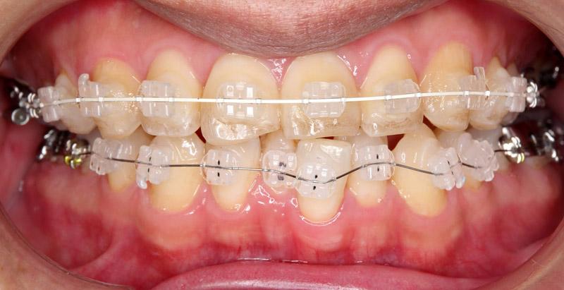 矯正するならクリア歯科新宿モノリス院が激安0